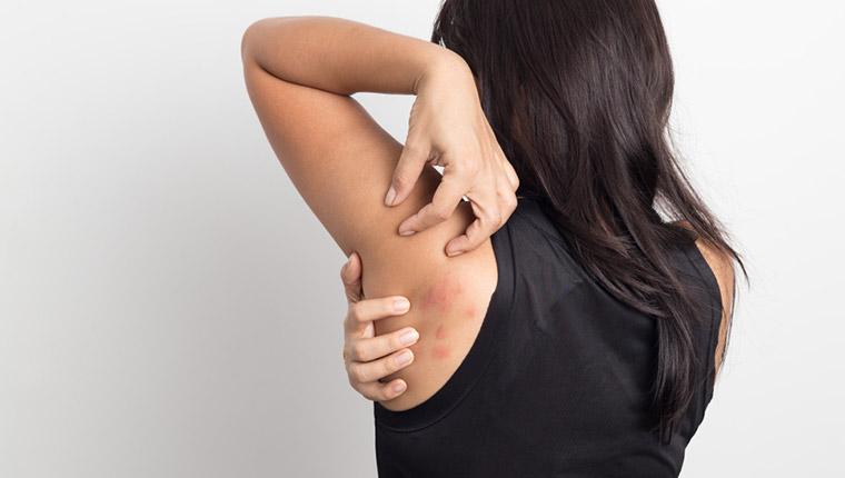 更年期の蕁麻疹(じんましん)の原因とは?