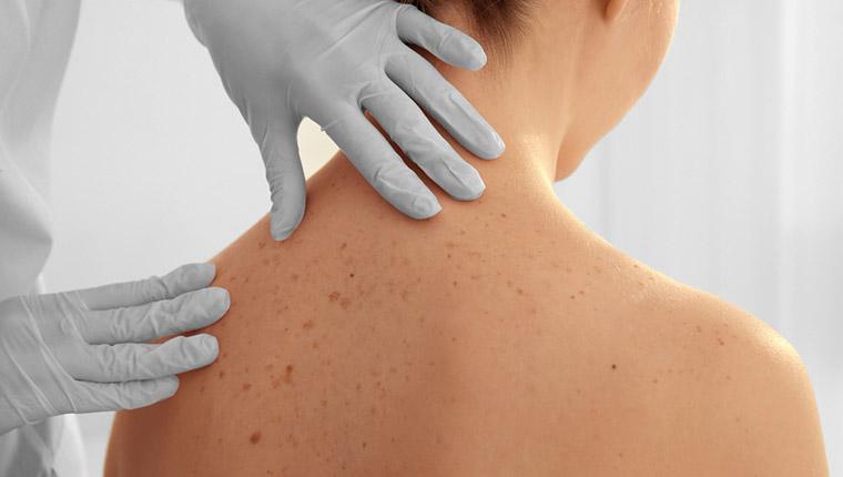蕁麻疹(じんましん)を起こさない予防策・対応策