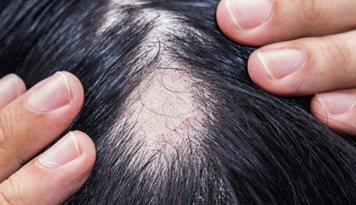 更年期に円形脱毛症になる原因|円形脱毛症に対する予防と対処法